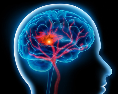 Coneguem les malalties cerebrovasculars: l'Ictus o infart cerebral